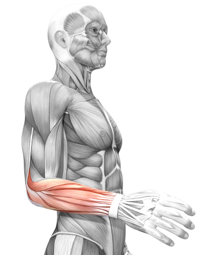 A picture showing the extensor muscles of the forearm and tennis elbow